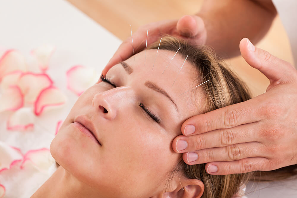 Woman getting acupuncture treatment on face by acupuncturists