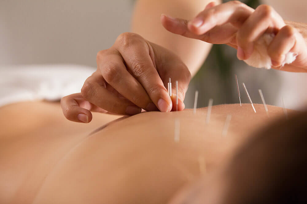 Woman getting acupuncture from acupuncturist in an acupuncture clinic